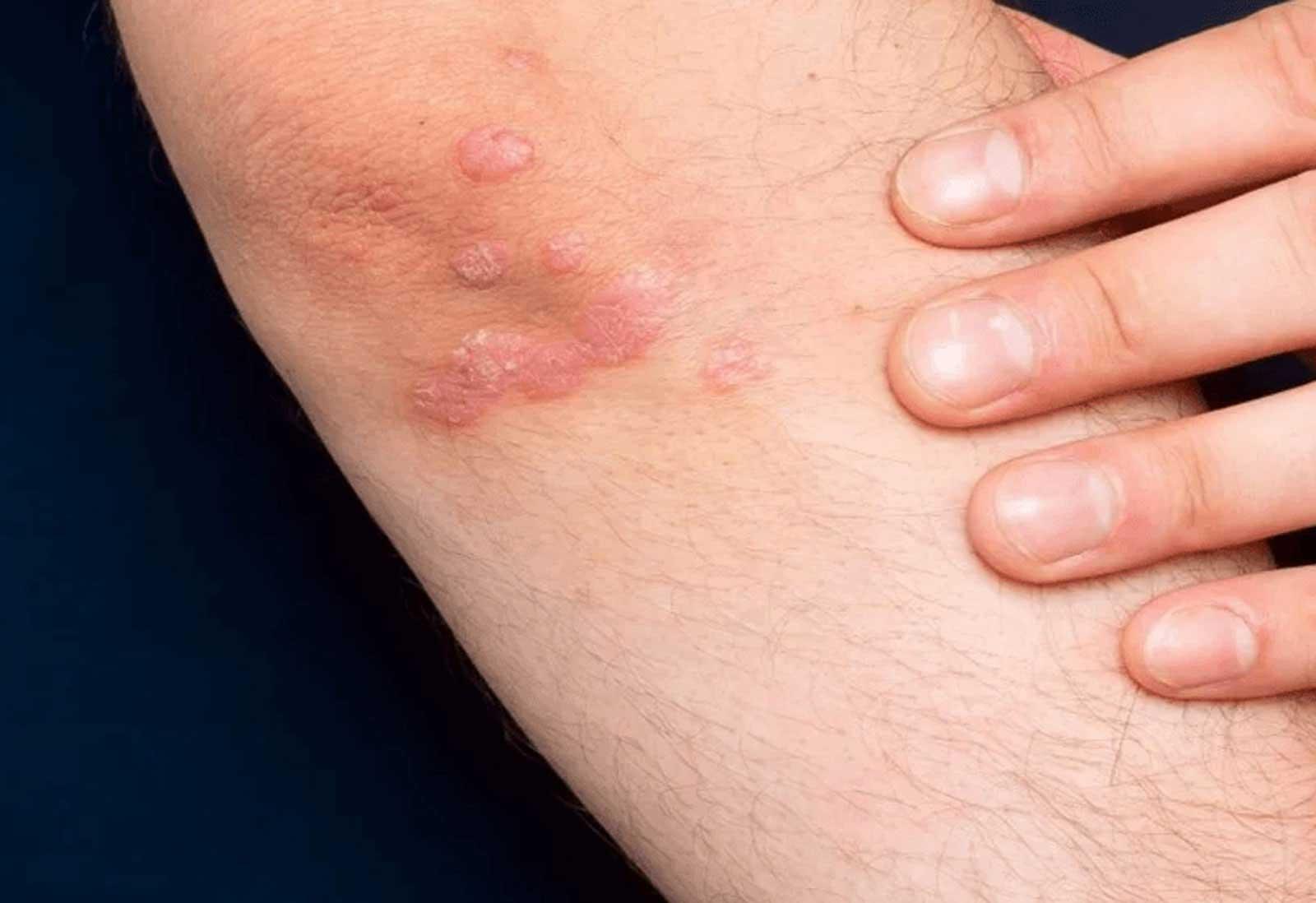 prichini-za-poivata-na-psoriasis-1600x1098