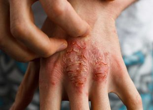 vidove-psoriasis-1600x1098